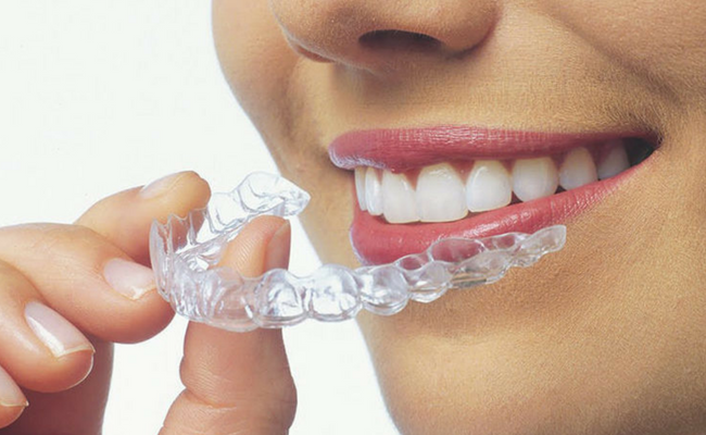 Clear Aligners